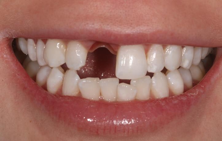 Dental implant wirral