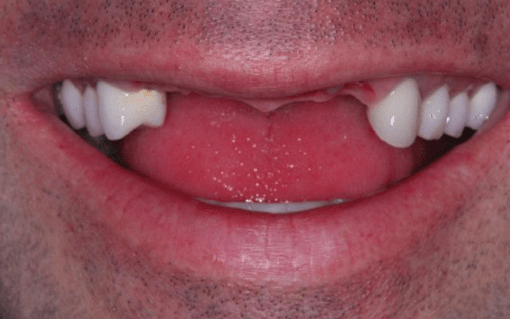 male mouth showing missing front teeth and requiring multiple dental implants