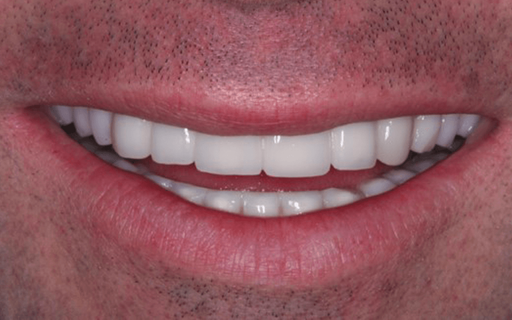 male mouth after recieving multiple dental implants