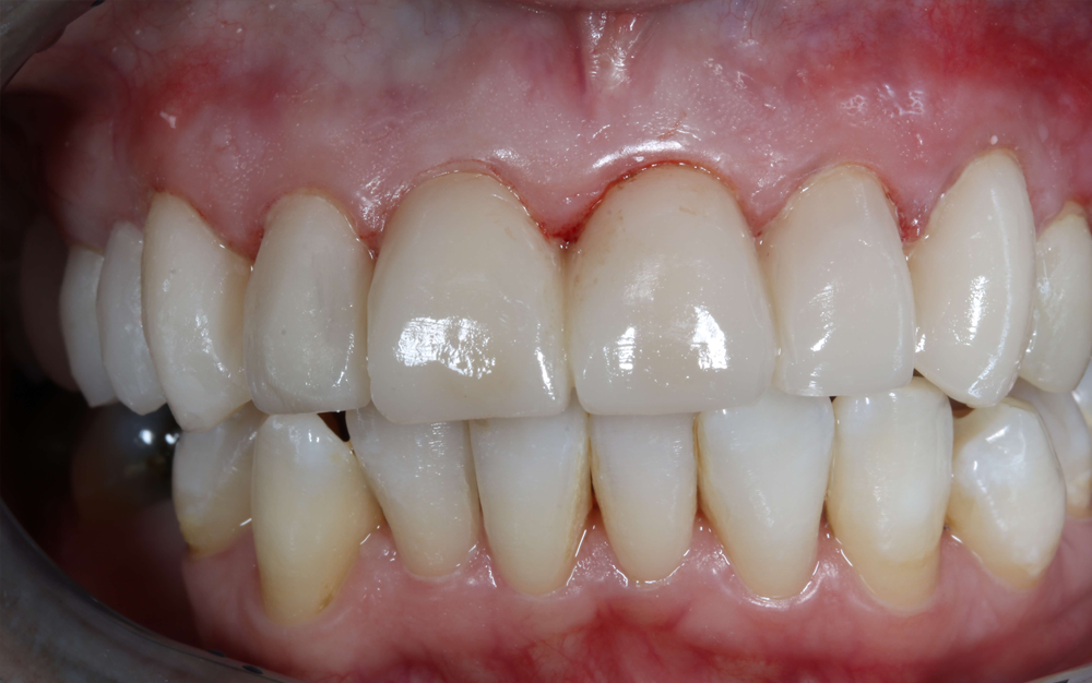 close up of smile with temporary teeth