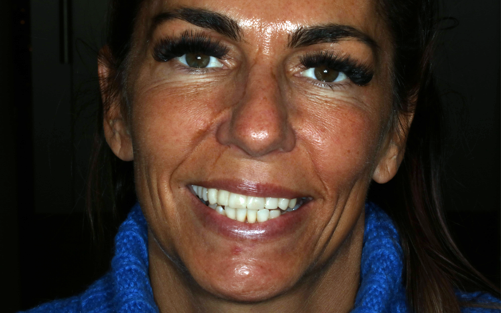 lady smiling showing tempory teeth